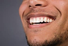 healthy smile close up