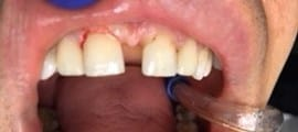 extremely gapped teeth after
