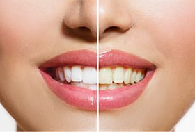 Up-close photo of a smile before and after teeth whitening in Gramercy Park, NY