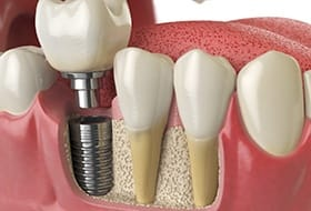 A digital image of a single dental implant sitting among a bottom row of teeth