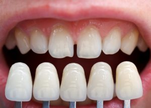 Imperfect teeth compared to porcelain veneers.