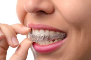 woman smiling inserting Invisalign tray